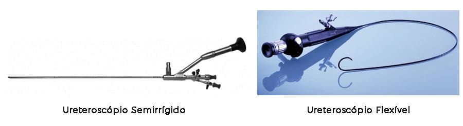 Resultado de imagem para ureteroscopio flexivel